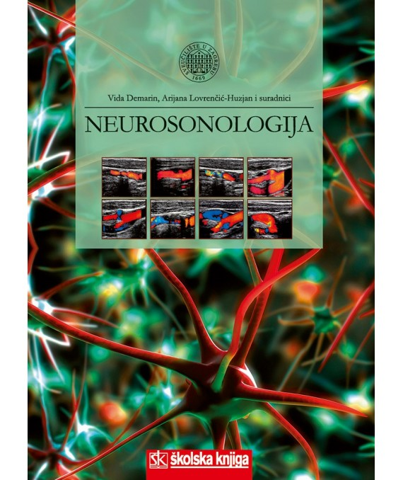 Neurosonologija